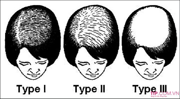 Điều trị rụng tóc hiệu quả nhất 2020
