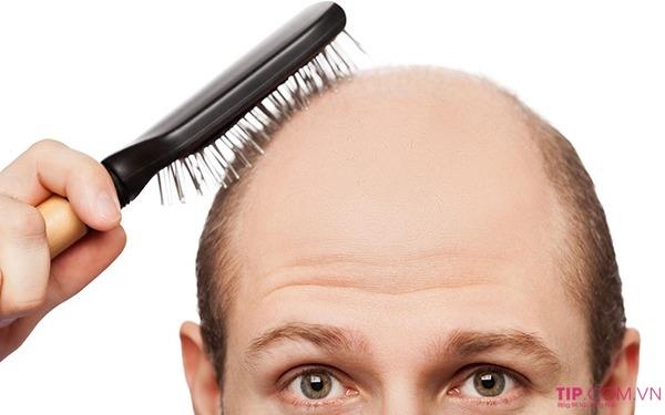 Rụng tóc androgenetic là gì?